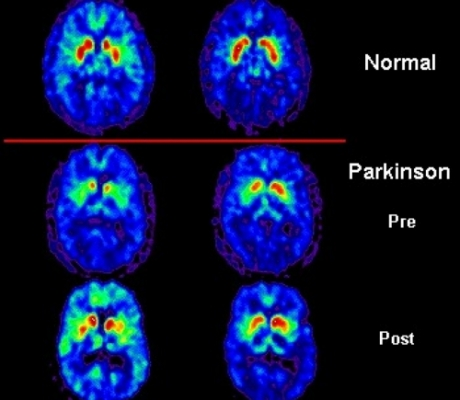 Parkinson, fondamentale la diagnosi precoce